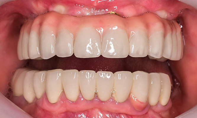 Implant supported denture after
